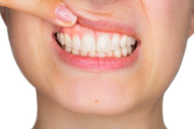 This is the image for the news article titled Healthy Gums for a Healthy Mouth